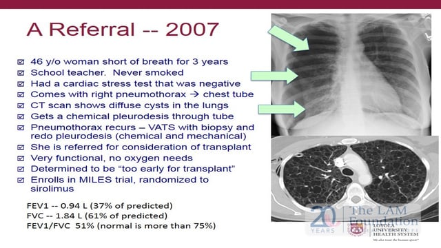 Lung Transplant - From Referral through Recovery